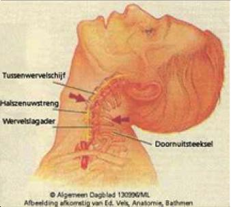 pijn nekspieren